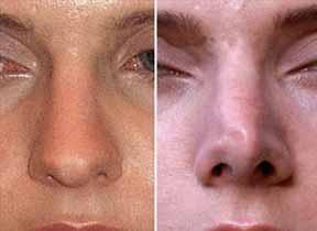 Πρόβλημα με το σχήμα της μύτης; Πλέον είναι απλό και χωρίς επέμβαση να το αλλάξεις