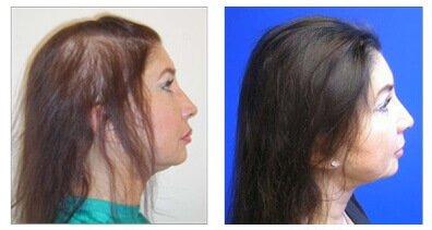 Princess Hair Für alle mit Haarverlust