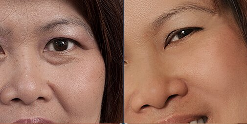 Rejuvenation minus 15 years with Goji Cream