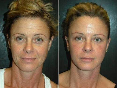 Pomlađivanje 15 godina manje bez botoksa Inno Gialuron
