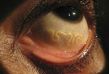 паразиты в глазах